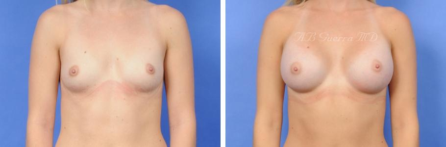 breast augmentation scottsdale az