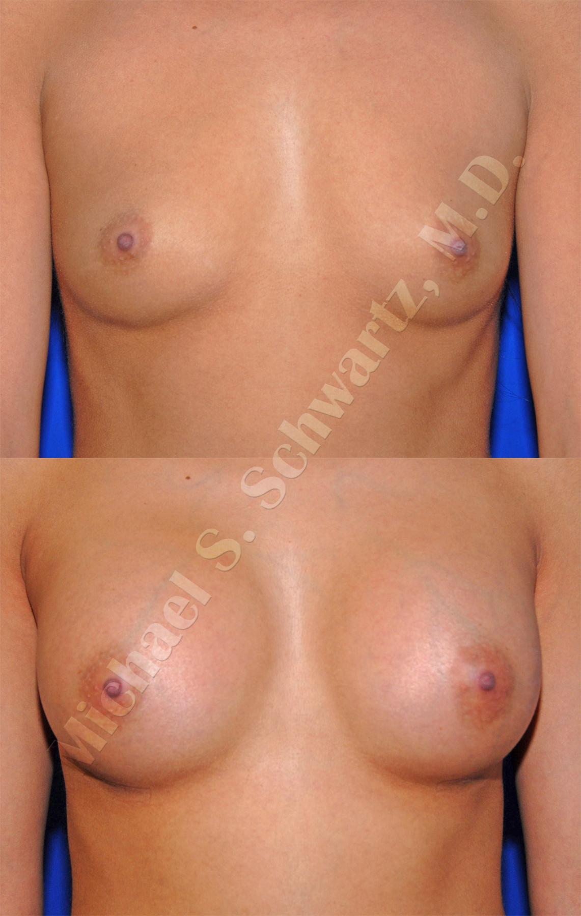 Breast augumentation b cup not see