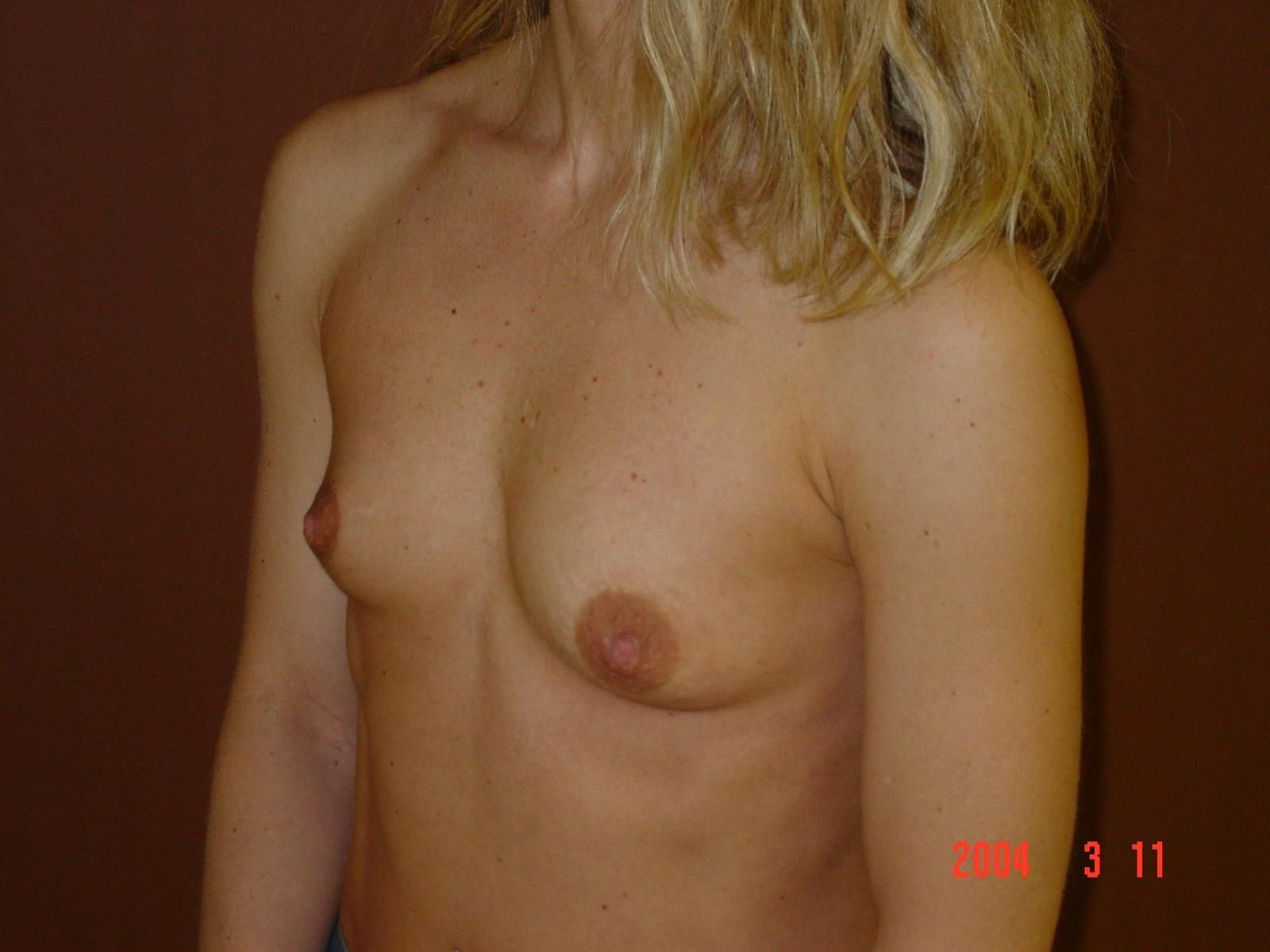 Teens and breast augmentation