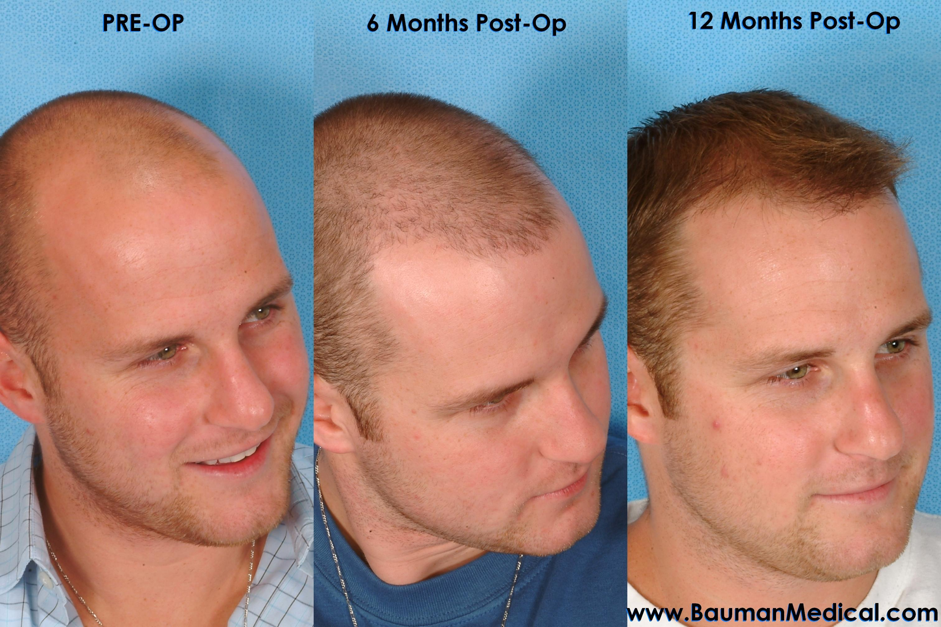 Hair Transplant Results Ag1