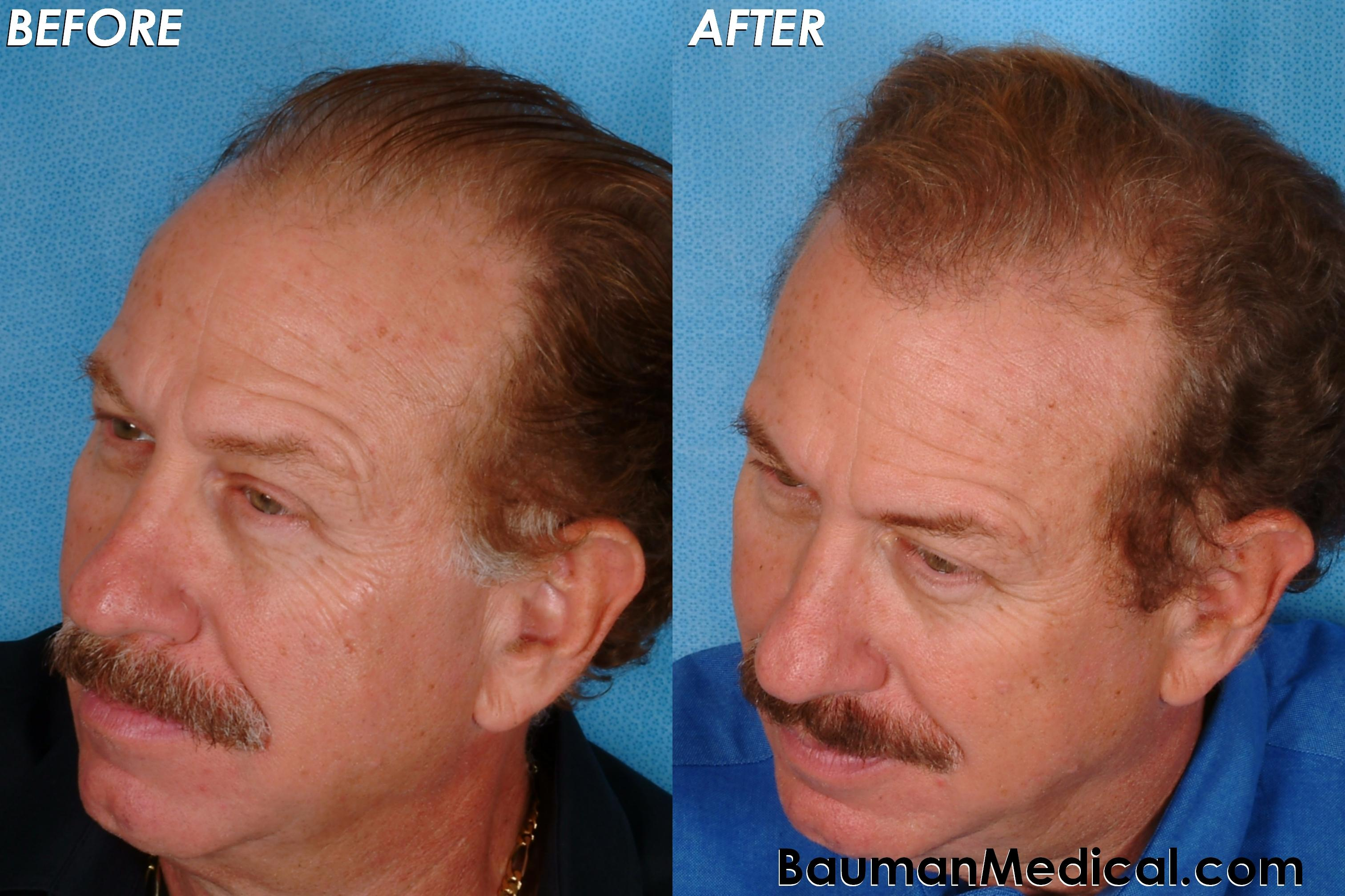 dr alan bauman review plastic surgeon doctor florida