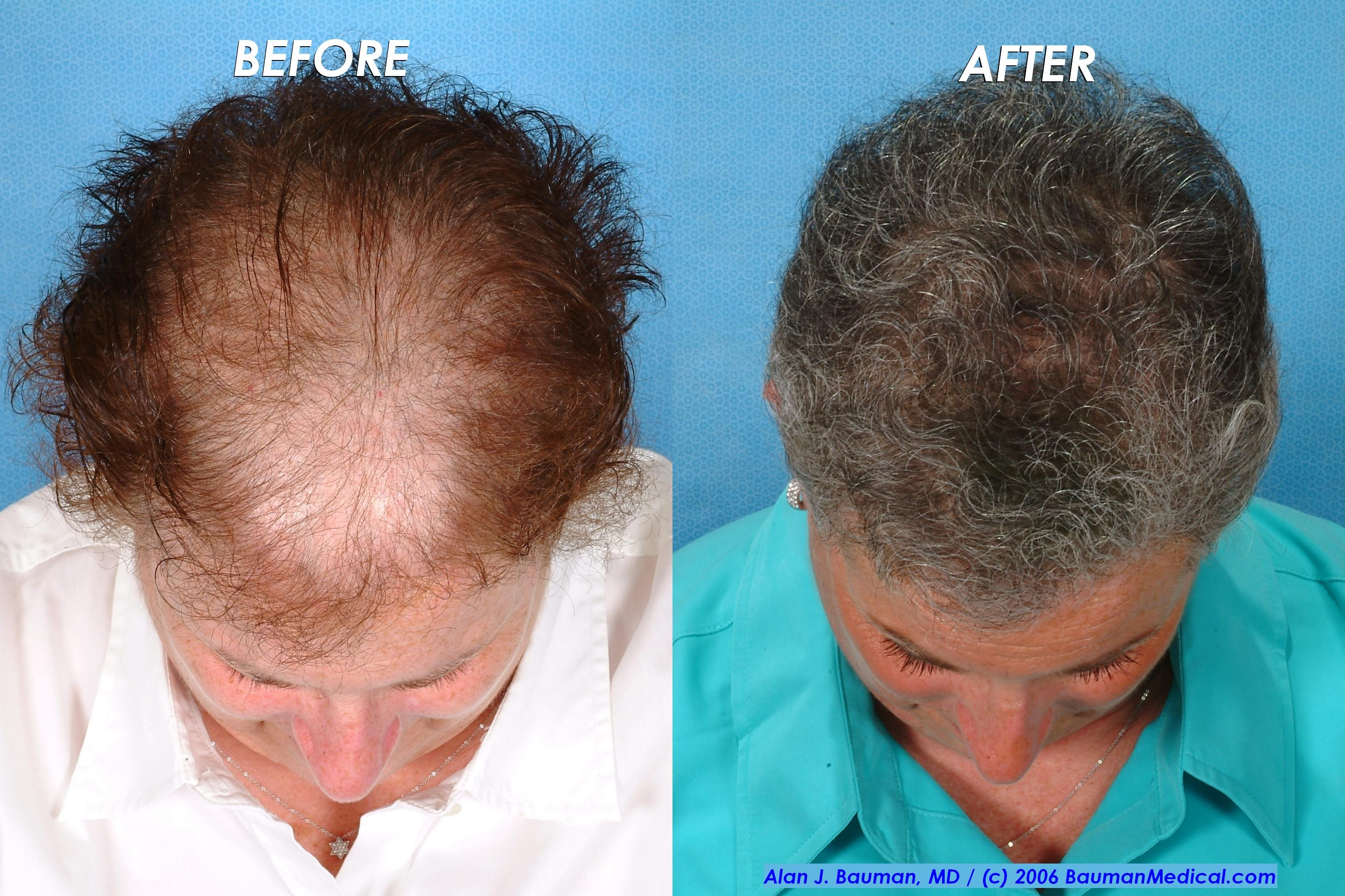 Female Hair Transplant Jd