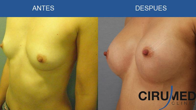 Photos of breast augmentation with silicone gel implants