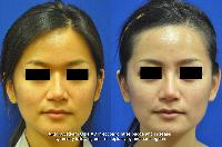 Nonsurgical Rhinoplasty