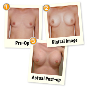 Breast Augmentation Pictures (Digital Imaging)