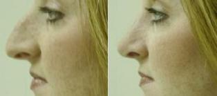 Rhinoplasty (Nose Surgery) Pictures (Digital Imaging)