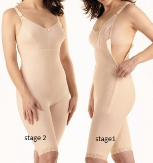Full Body Plastic Surgery Compression Garment W/ Bra -Above Knee - Stage 1 (Marena)