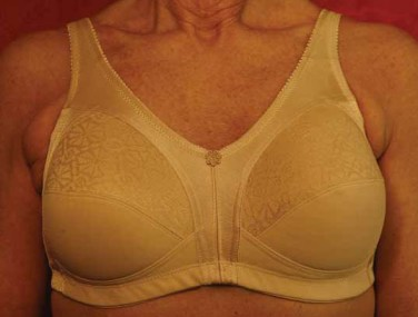 American Breast Care Lacy M-Frame Bra