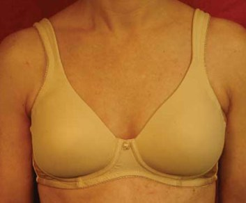 American Breast Care Seamless T-Shirt Bra (White)