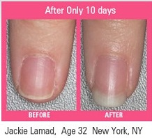 Biotin Nails Before and After