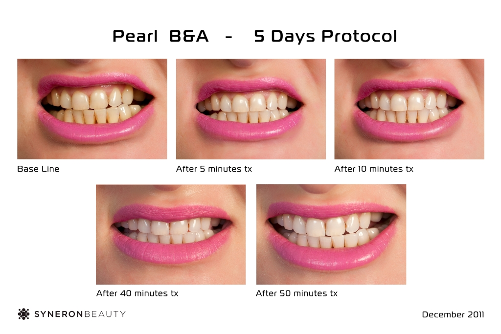 Tanda Pearl Ionic Teeth Whitening System Kit Tanda Fg70741us