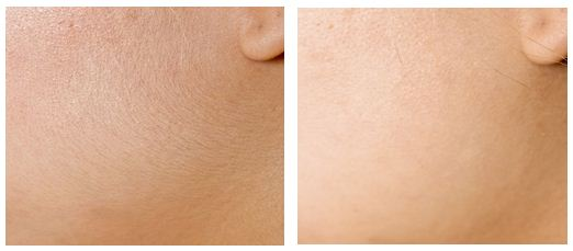 Silk'n Sensepil, Hair Removal, Cheeks, Jaw, Before, After Photos