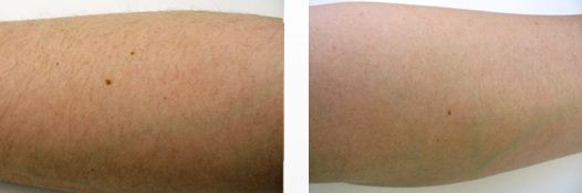 Silk'n Sensepil, Hair Removal, Arms, Left, Before, After Photos