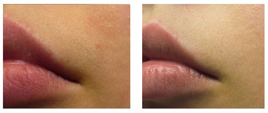 Silk'n Sensepil, Hair Removal, Lips, Before, After Photos