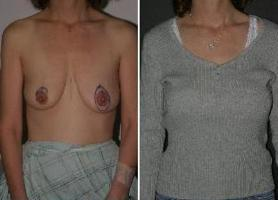 Breast augmentation photo shop