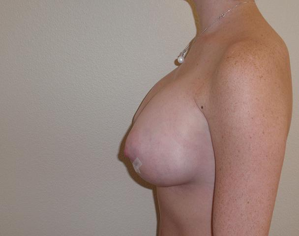 3 days after breast augmentation jpg 422x640