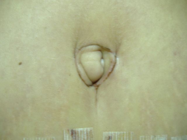 7 days post-op Belly Button