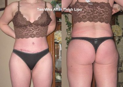 Thighs 10wks after Lipo