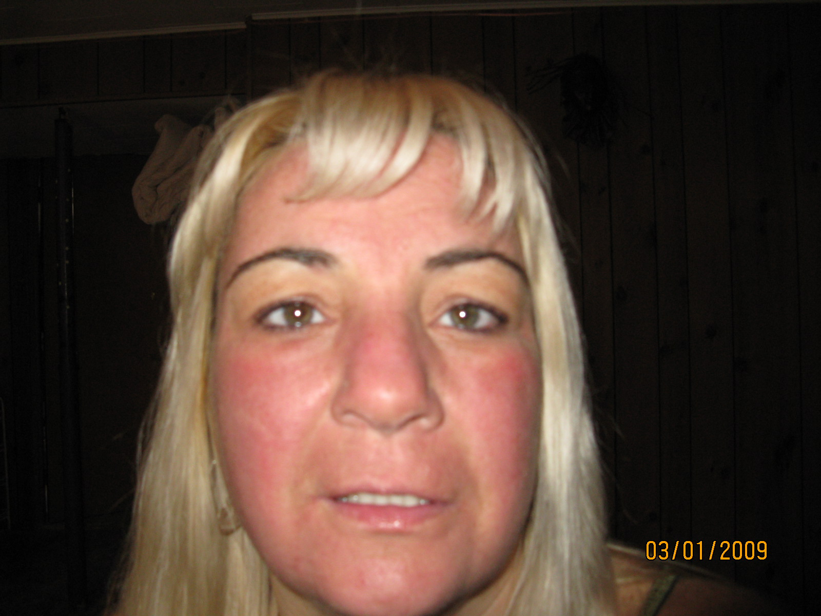 Day 4- face still swollen, red, peeling and started to get really itchy this morning.
