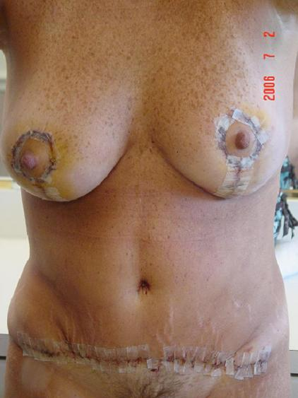 5 days Post Op- left breast looks lower??