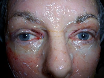 Post Op Vaginoplasty http://www.makemeheal.com/pictures/blepharoplasty/post-op-day-1-p108613