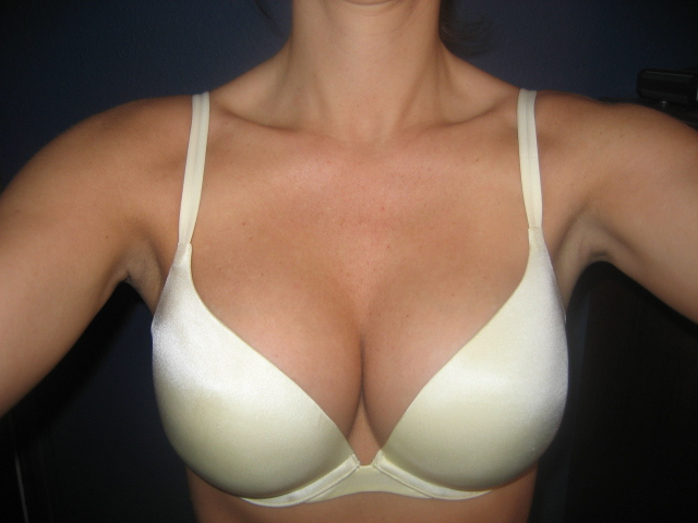 breast reduction patients