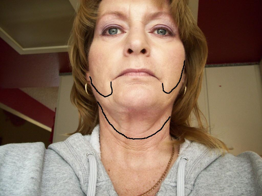 uneven pull on neck