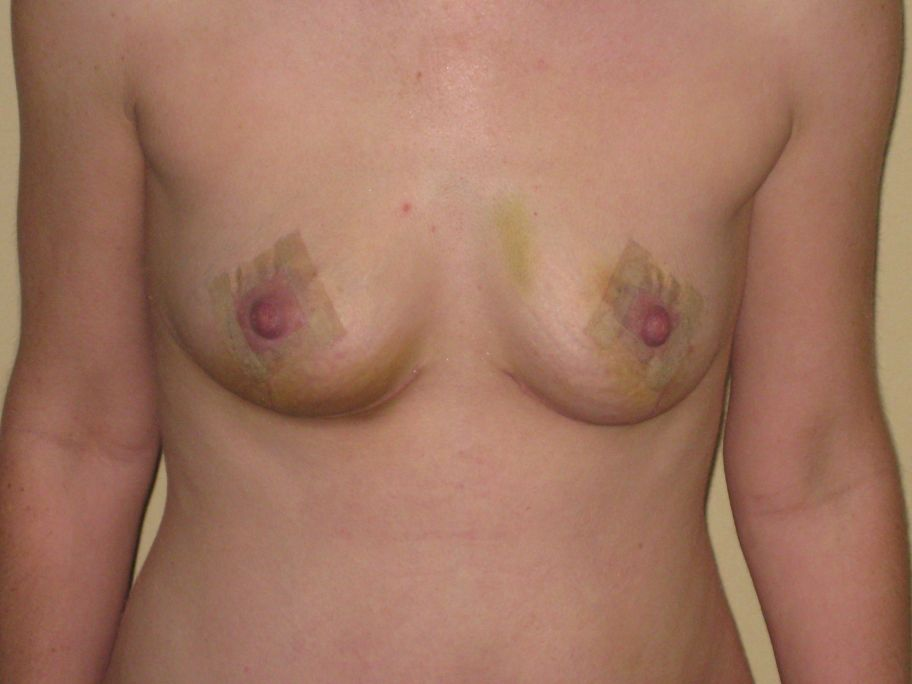 2 Week Post-Op Front view of boobs