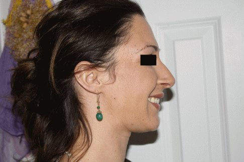 Before - Side profile, Smiling