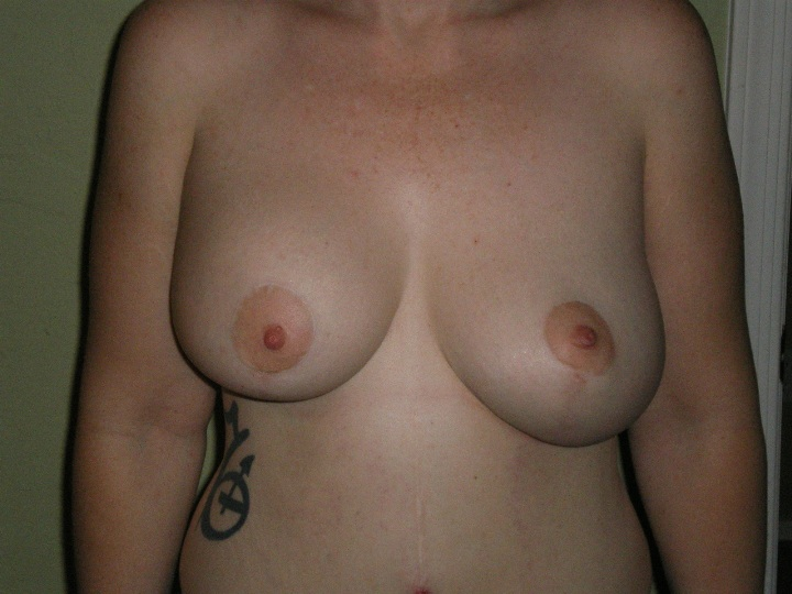Front view of CC in right breast