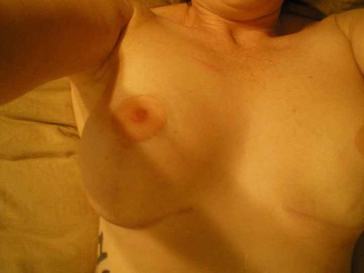 Picture of my laying on my back and the placement of the breasts.