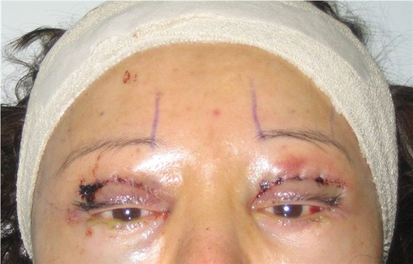 Day 1 : 5 Dec 05 : Endo Brow lift, bilateral upper eyelid reconstruction
