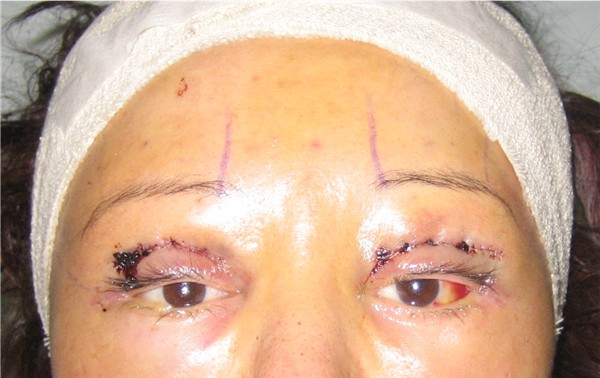 Day 2 : 6 Dec 05 : Y-V Endo brow lift, bilateral upper eyelid reconstruction & ptosis repair