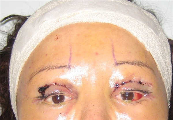 Day 3 : 7th Dec 05 : Y-V Endo Brow Lift & Bilateral Upper Eyelid Reconstruction