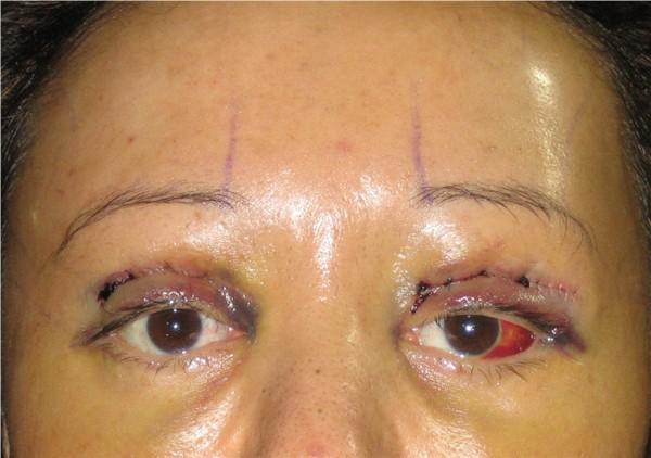 Day 4 : Y-V Endo Brow Lift & bilateral upper eyelid reconstruction