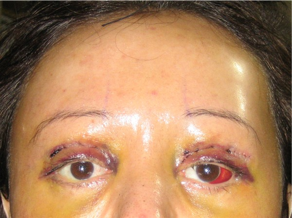 Day 5 : Y-V Endo Brow Lift & bilateral upper eyelid reconstruction