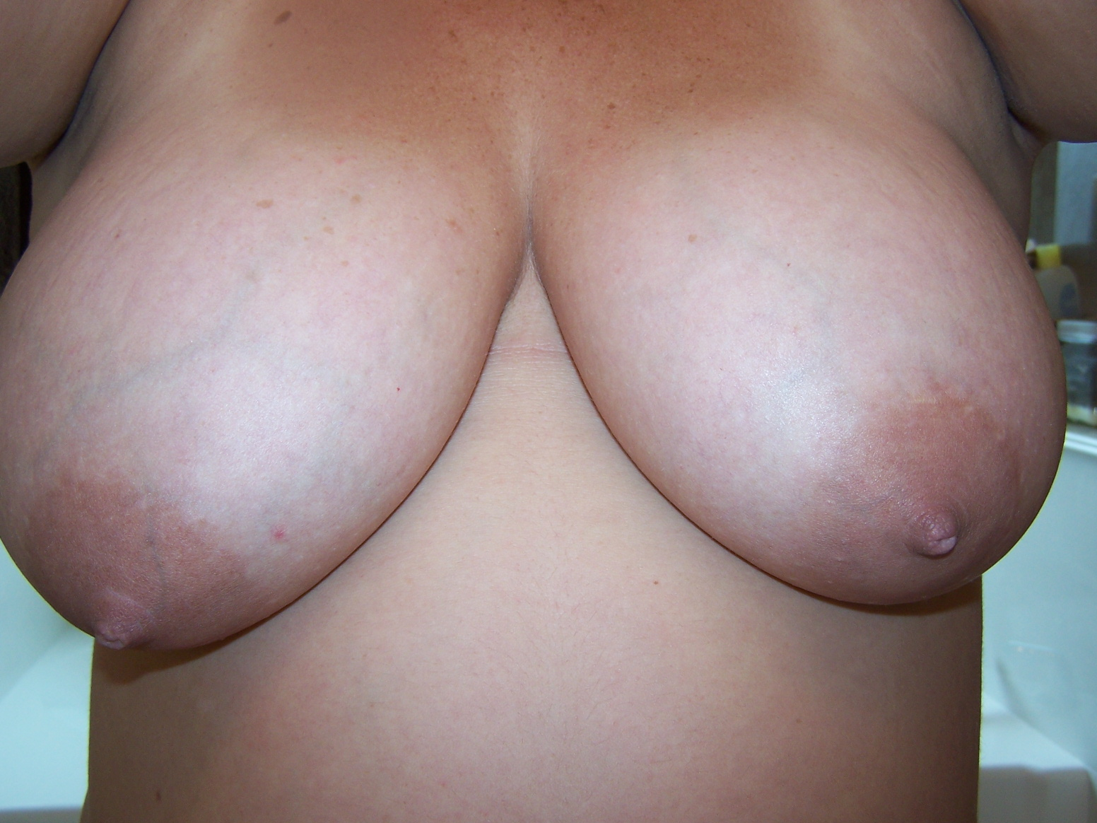 Breasts (Front) Before