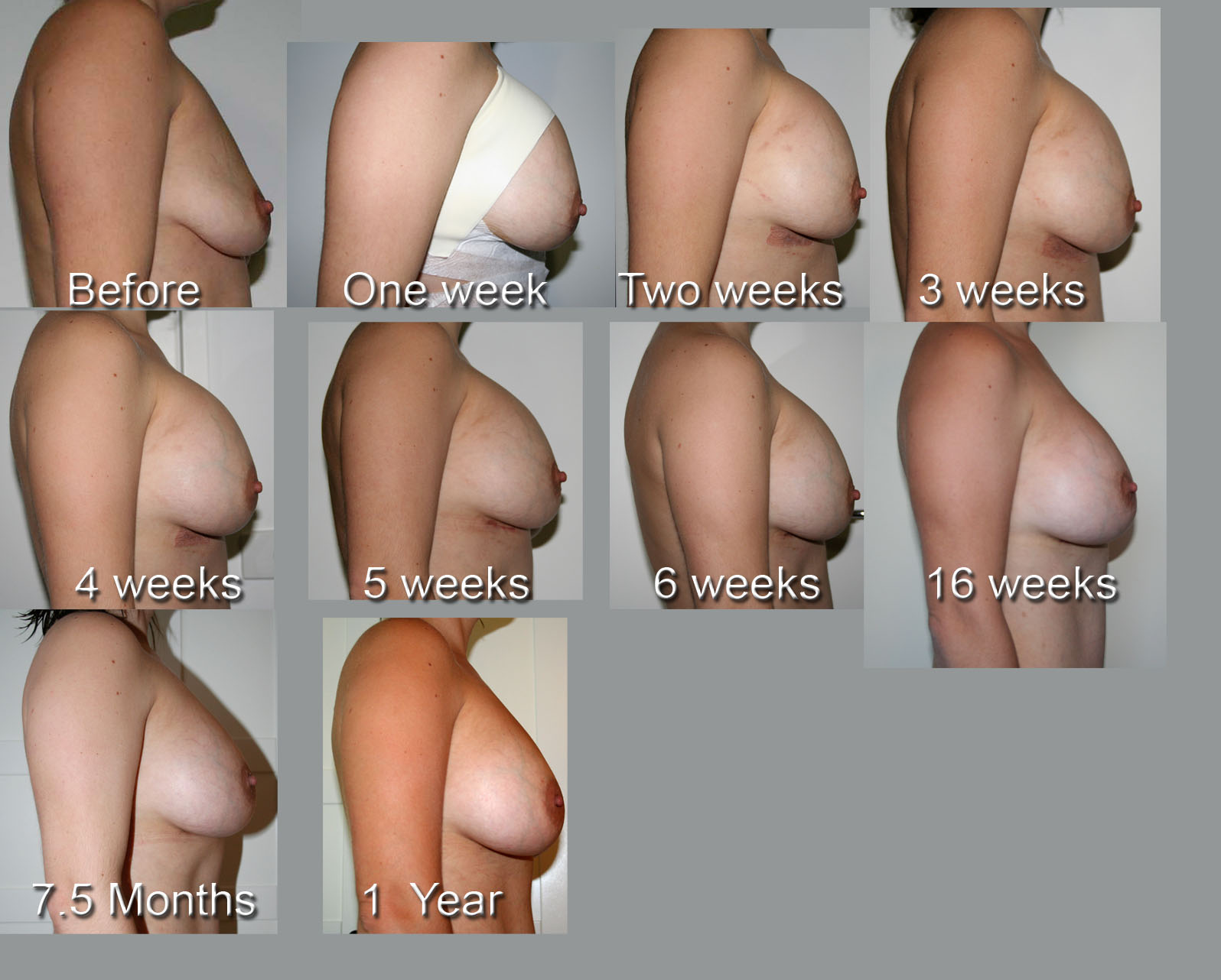 Types Of Boob Jobs 77