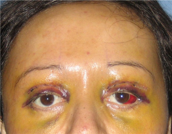 Day 6 : Y-V Endo brow lift, bilateral upper eyelid reconstruction