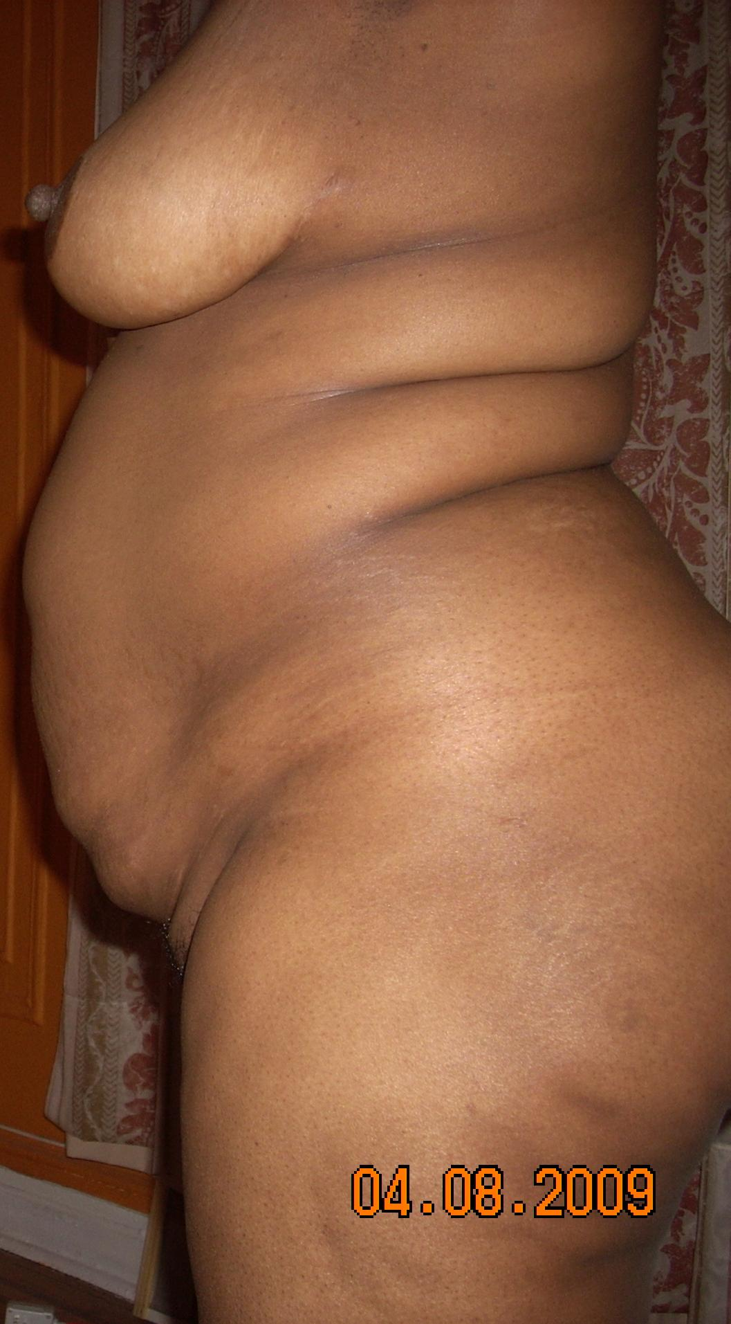 Side View 2_Stomach