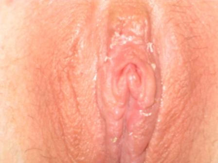 penis Enlarged clitoris