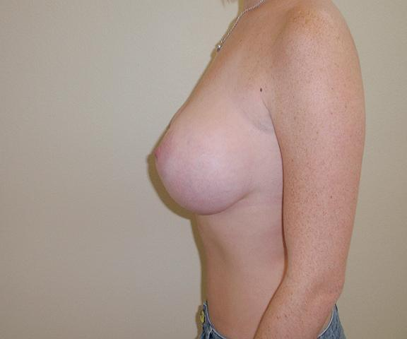 6 Month Post Op