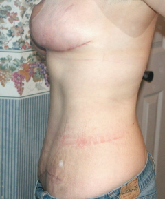 1 month post op - side