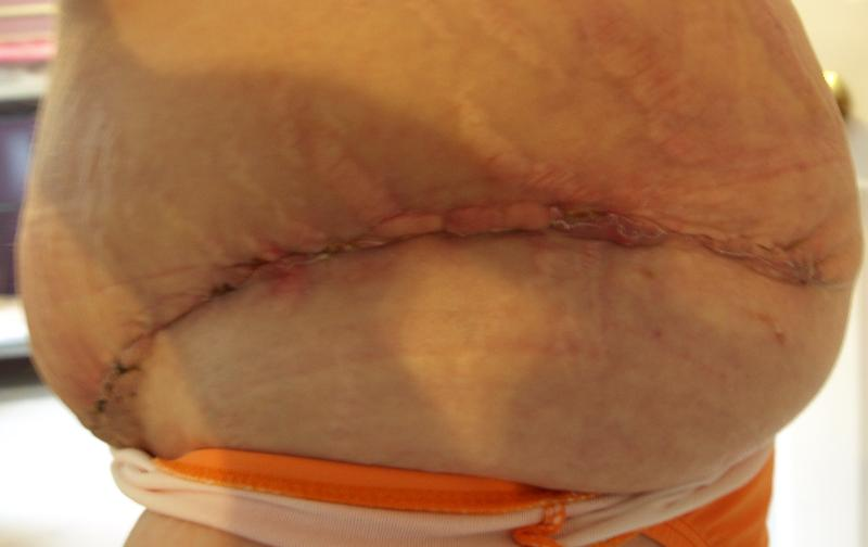 Side Incision Day 14