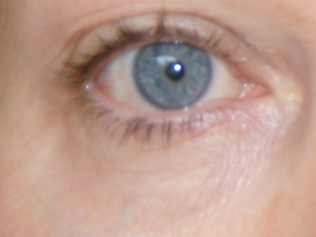 close up of one of my eyes now in 2009