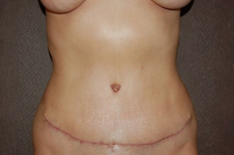 3 weeks after my tummy tuck