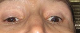 left upper eyelid does not close all the way