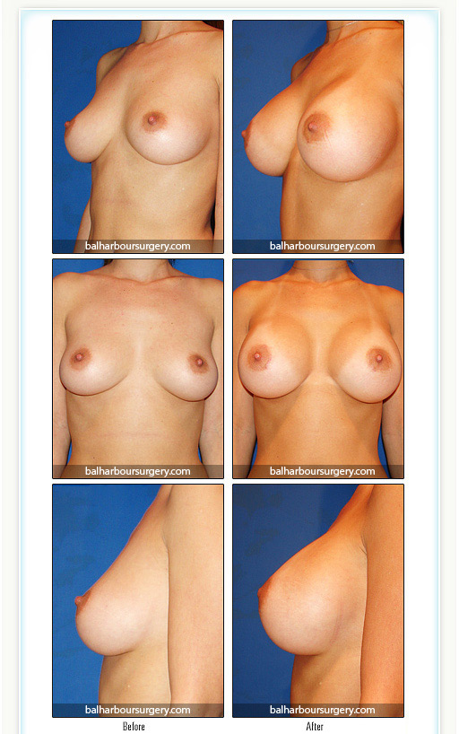 Breast Augmentation Miami