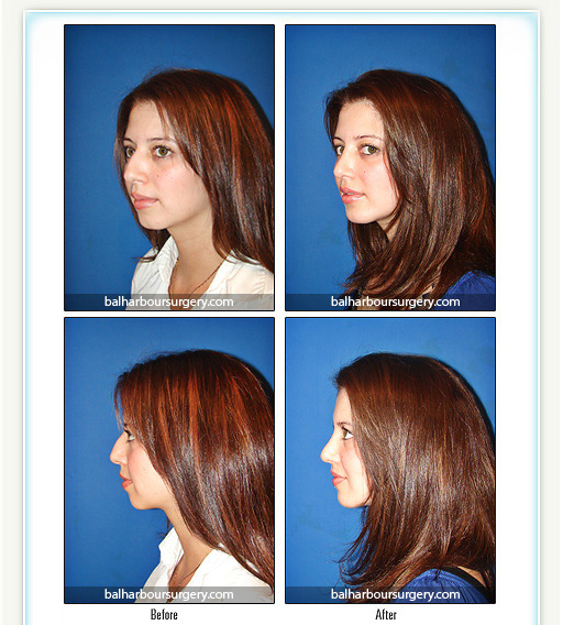 Chin Augmentation- Chin Implant
