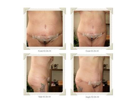 Lipo & Pouch Revision 4 Days PO